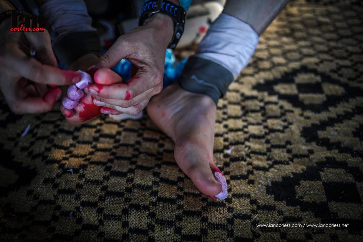 Marathon des Sables foot preparation blister taping
